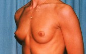 Breast Augmentation Patient 19157 Before Photo # 1