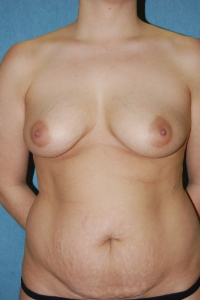 Tummy Tuck Patient 90559 Before Photo # 1