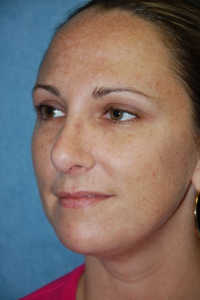 Chin Augmentation Patient 27625 After Photo # 2