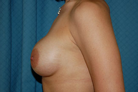 Breast Augmentation Patient 68672 After Photo # 4