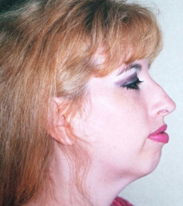 Face Lift and Neck Lift Patient 76674 Before Photo # 1
