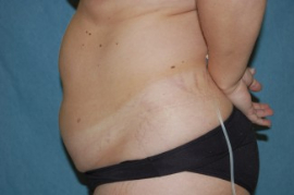 Liposuction Patient 79601 Before Photo # 5