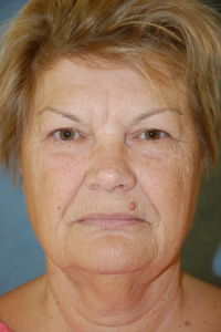 Face Lift and Neck Lift Patient 74597 Before Photo # 1