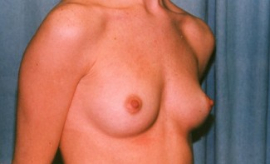 Breast Augmentation Patient 35218 Before Photo # 5
