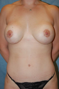 Breast Enhancement and Tummy Tuck Patient 81426 After Photo # 2