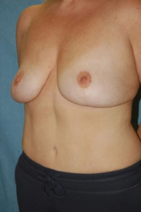 Breast Enhancement and Tummy Tuck Patient 16498 After Photo # 4