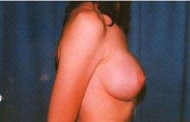Breast Augmentation Patient 39680 After Photo # 4