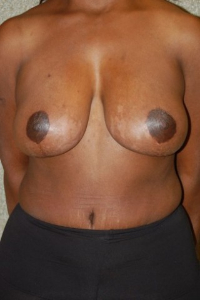Breast Enhancement and Tummy Tuck Patient 39346 After Photo # 2