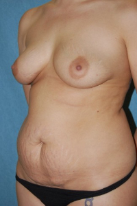 Tummy Tuck Patient 90559 Before Photo # 3
