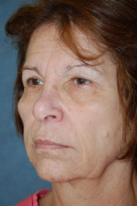 Face Lift and Neck Lift Patient 18954 Before Photo # 3