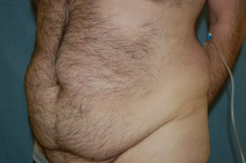 Tummy Tuck Patient 95680 Before Photo # 3