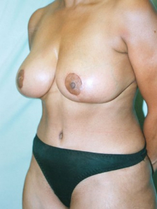 Tummy Tuck Patient 56958 After Photo # 4