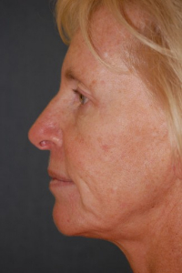Face Lift and Neck Lift Patient 59380 Before Photo # 3