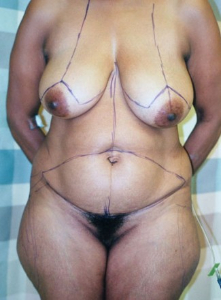 Breast Enhancement and Tummy Tuck Patient 22589 Before Photo # 3
