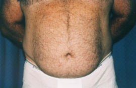 Tummy Tuck - Men Patient 44902 Before Photo # 1