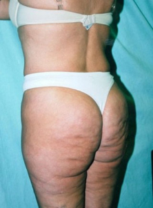 Body Lift Patient 34135 Before Photo # 3