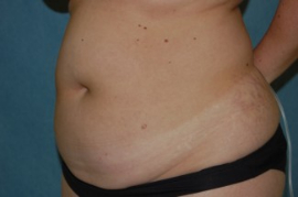 Liposuction Patient 79601 Before Photo # 3