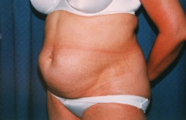 Tummy Tuck Patient 19101 Before Photo # 3