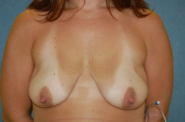 Breast Augmentation and Lift Patient 28581 Before Photo # 1