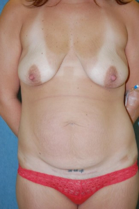 Breast Enhancement and Tummy Tuck Patient 81426 Before Photo # 1