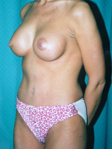Breast Enhancement and Tummy Tuck Patient 90821 After Photo # 2