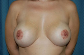 Breast Augmentation and Lift Patient 17767 After Photo # 2