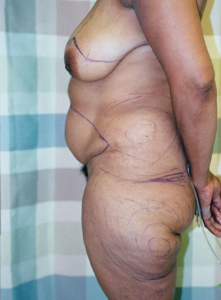 Breast Enhancement and Tummy Tuck Patient 22589 Before Photo # 1