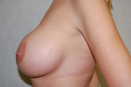 Breast Augmentation Patient 54026 After Photo # 6
