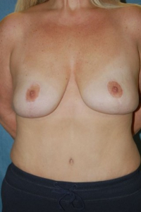 Breast Enhancement and Tummy Tuck Patient 16498 After Photo # 2