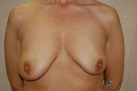 Breast Augmentation Patient 44021 Before Photo # 1