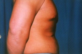 Tummy Tuck - Men Patient 43311 Before Photo # 3