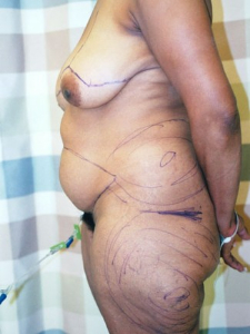 Tummy Tuck Patient 56958 Before Photo # 1