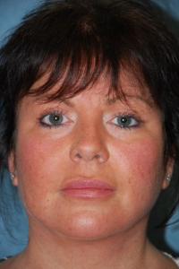 Face Lift and Neck Lift Patient 15871 After Photo # 2