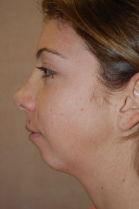 Chin Augmentation Patient 79295 Before Photo # 1