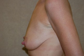 Breast Augmentation Patient 42926 Before Photo # 3