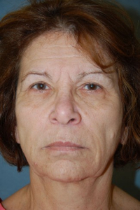 Face Lift and Neck Lift Patient 18954 Before Photo # 1