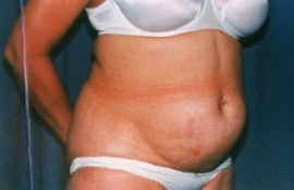 Tummy Tuck Patient 19101 Before Photo # 1