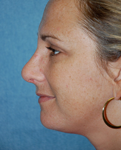 Rhinoplasty Patient 70122 After Photo # 6