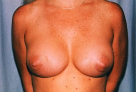 Breast Augmentation Patient 14400 After Photo # 2