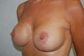 Breast Augmentation Patient 42926 After Photo # 6