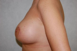 Breast Augmentation Patient 44021 After Photo # 4