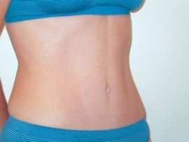 Mini Tummy Tuck Patient 74818 After Photo # 2