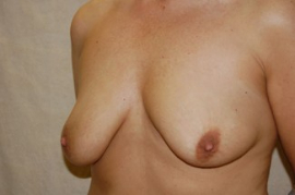 Breast Augmentation Patient 44021 Before Photo # 5