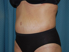 Body Lift Patient 56396 After Photo # 2