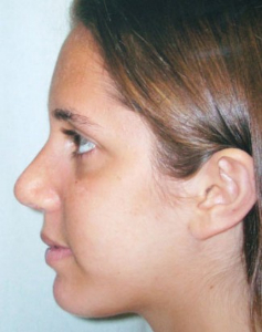Chin Augmentation Patient 37617 After Photo # 2