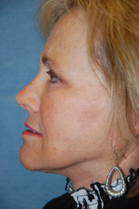 Face Lift and Neck Lift Patient 49297 After Photo # 6