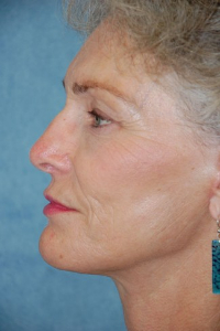 Face Lift and Neck Lift Patient 89542 After Photo # 4