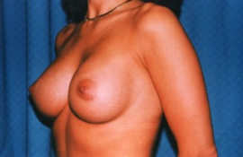 Breast Augmentation Patient 71703 After Photo # 4