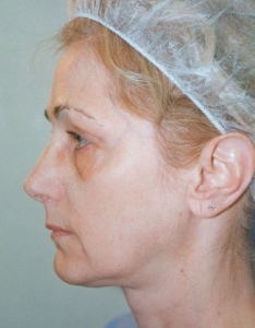 Face Lift and Neck Lift Patient 40143 Before Photo # 1