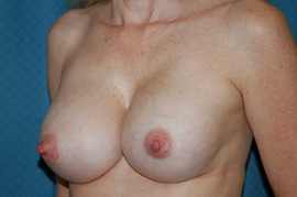 Breast Revision - (Breast Redo) Patient 89412 After Photo # 2